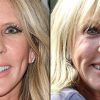 Pictured: Real Housewives of Orange County star Vicki Gunvalson gets chin implant in plastic surgery makeover