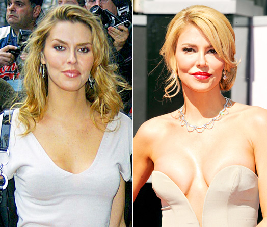 http://realitywives.net/blogs/wp-content/uploads/2013/04/brandi-glanville-plastic-surgery.jpg