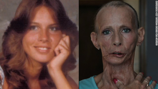 Star Of Anti-Smoking Ad Campaign Dies Of Cancer