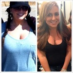 Lauren Manzo Gets a Breast Reduction, Shares Before and After Photos