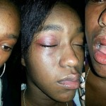 Houston Teen Beaten By 'Friend' Caught On Camera, Speaks Out