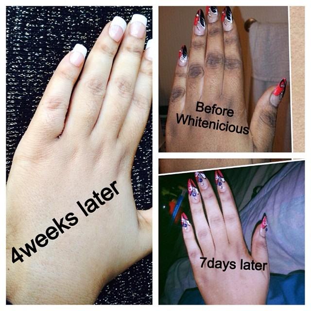 whitenicious hand