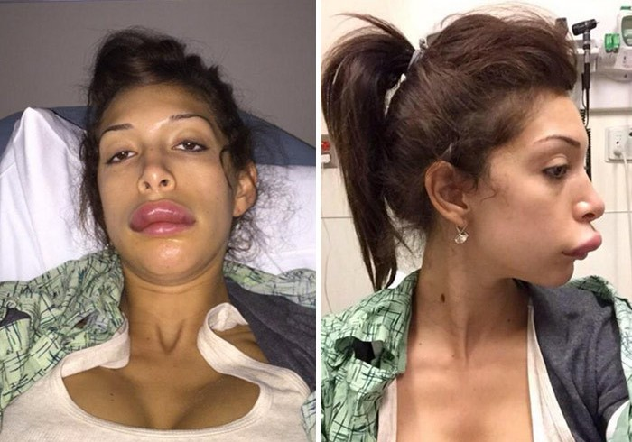Teen Mom | Farrah Abraham Rushed To Hospital After Botched ...