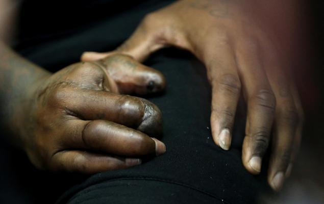 Jason Pierre-Paul_hand injury