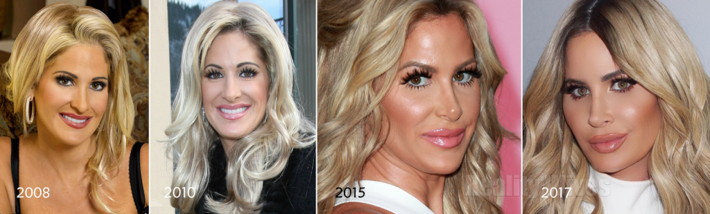 Kim Zolciak-faces-2008-2017