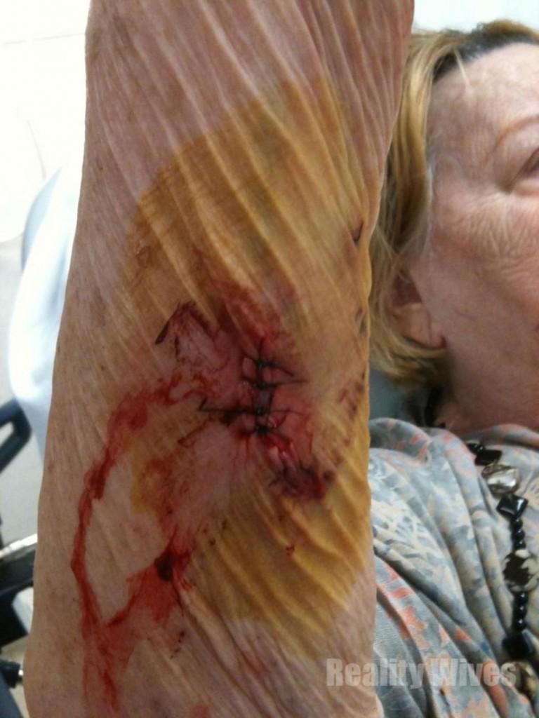 Kay Rozario-injury