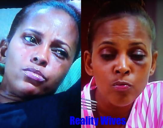 sundy-carter-black eye-collage-rw