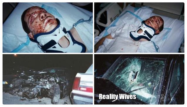 Shaun King-car accident