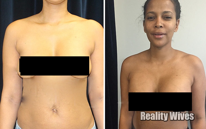 sundy-carter-gets-boobs-before-after-md