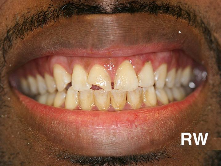 fabolous teeth-before
