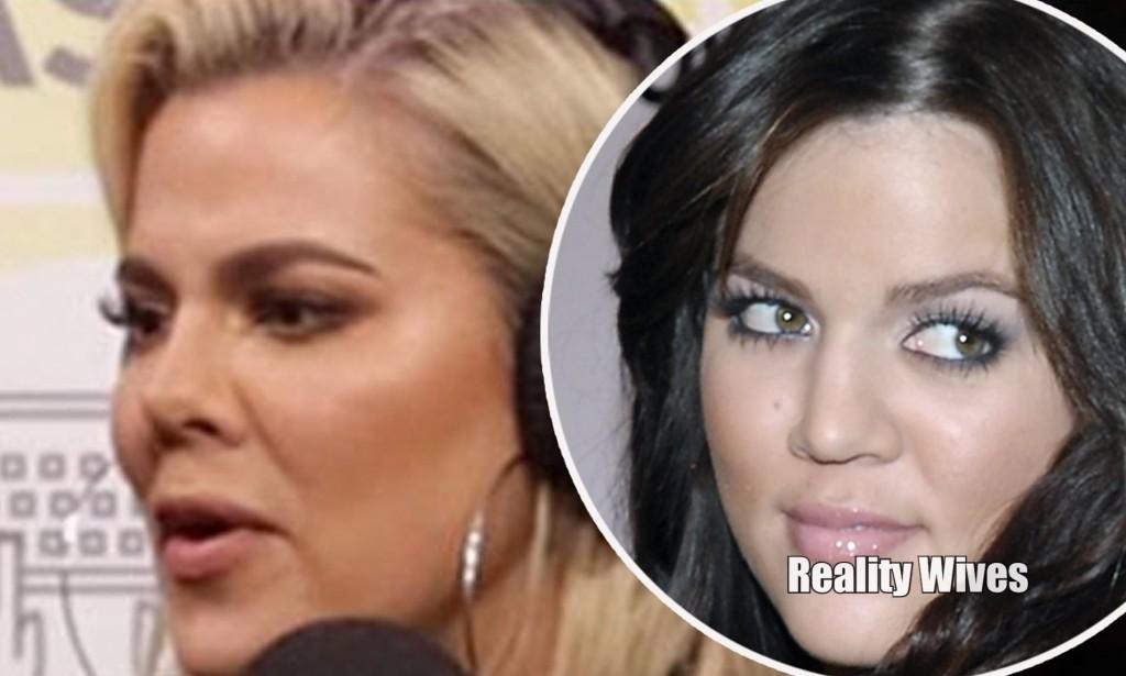 Khloe Kardashian_nose_RW